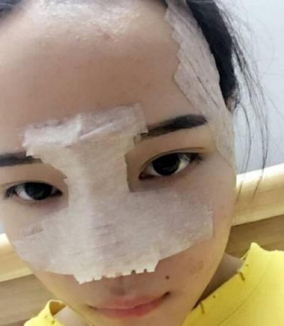 找广州韩妃医学美容医院杨德发做自体脂肪面部填充术后5天