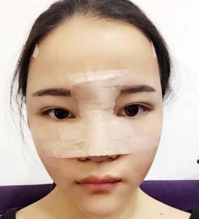 找广州韩妃医学美容医院杨德发做自体脂肪面部填充术后10天