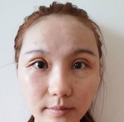 在广州韩妃医学美容医院做的自体脂肪面部填充术后5天