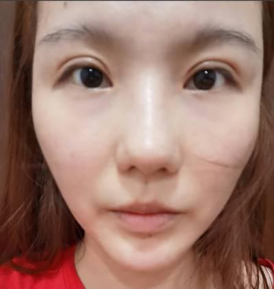 在广州韩妃医学美容医院做的自体脂肪面部填充术后10天