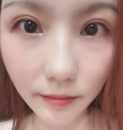 在广州韩妃医学美容医院做的自体脂肪面部填充术后40天