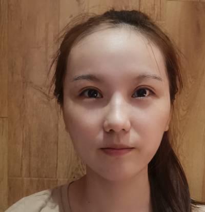 在广州韩妃医学美容医院做的自体脂肪面部填充手术后60天