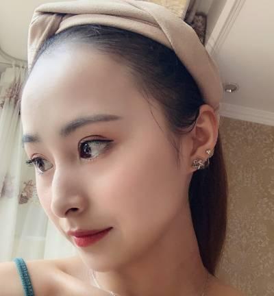 在广州韩妃医学美容医院做全切双眼皮手术后30天