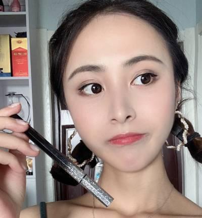 在广州韩妃医学美容医院做全切双眼皮手术后15天