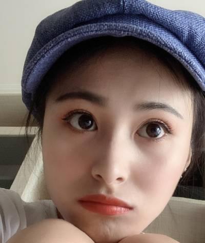 在广州韩妃医学美容医院做全切双眼皮手术后50天