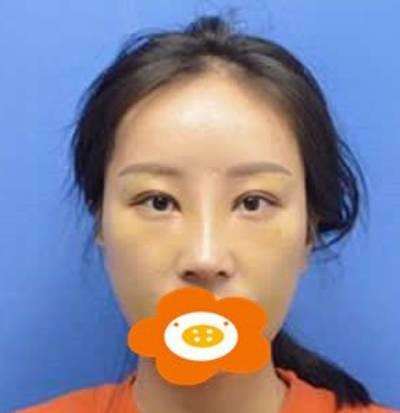 在广州韩妃找李军军做完肋软骨隆鼻术后第7天