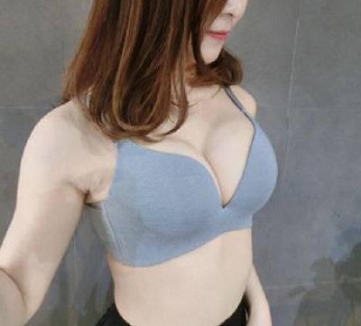 在广州韩妃找沈绍勇院长做假体隆胸手术后15天