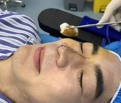 在广州星团整形医院找赵辉做的鼻综合整形手术后