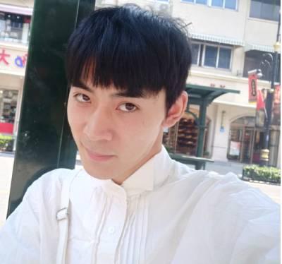 在广州星团整形医院找赵辉做的鼻综合整形手术后20天