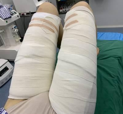 广州星团整形医院的赵辉为我做的吸脂瘦大腿手术后