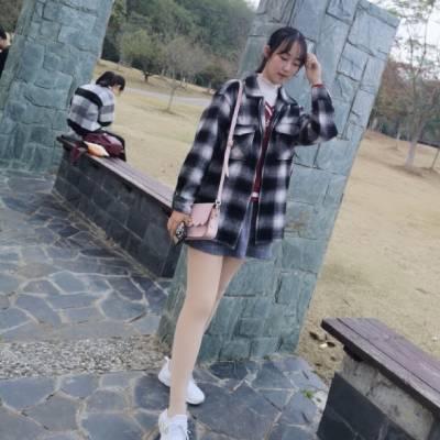 广州星团整形医院的赵辉为我做的吸脂瘦大腿手术后7天
