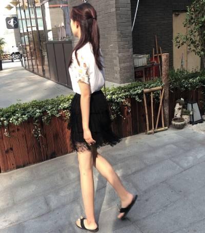 广州星团整形医院的赵辉为我做的吸脂瘦大腿手术后15天