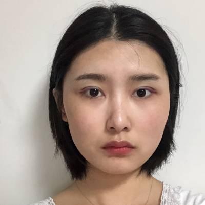 广州星团整形医院林丰为我做的全切双眼皮手术后7天
