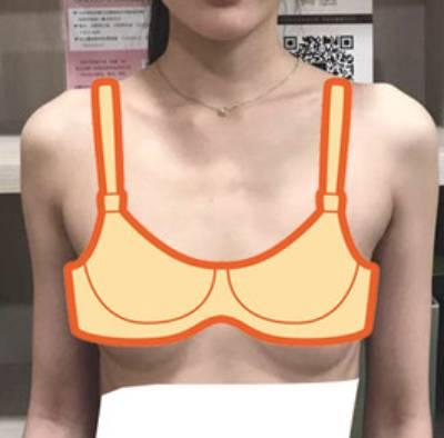 月音瞳的假体隆胸术前照