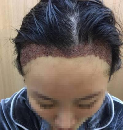 广州倍生植发医院杨晓为我做的发际线种植手术后2天