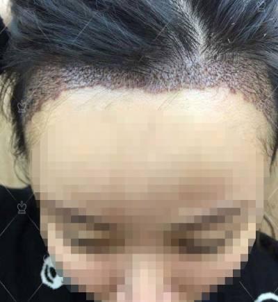 广州倍生植发医院杨晓为我做的发际线种植手术后10天