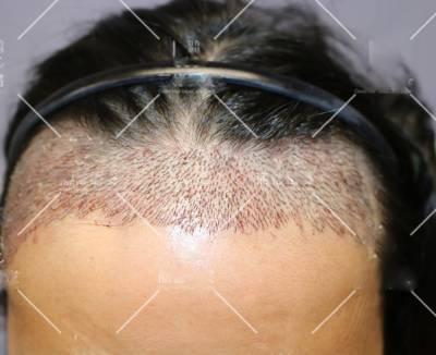 去广州倍生植发医院做了发际线种植手术后5天