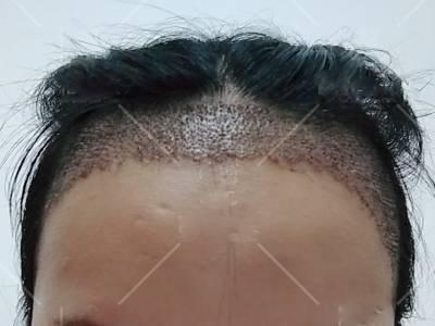 去广州倍生植发医院做了发际线种植手术后15天