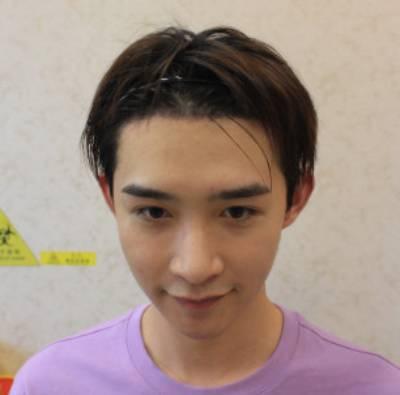 在广州倍生植发医院找杨晓做发际线种植手术后10天