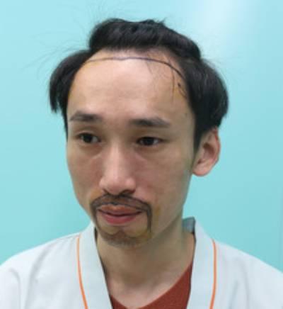 去广州倍生植发医院找廖骏医生做了胡须+鬓角种植手术前