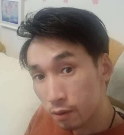 去广州倍生植发医院找廖骏医生做了胡须+鬓角种植手术后两个月
