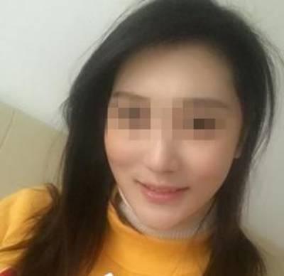 真人案例:广州倍生植发医院头发种植手术后,秃顶女孩变少女