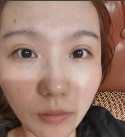 在广州韩妃医学美容医院找曾繁茂做自体脂肪面部填充手术后7天