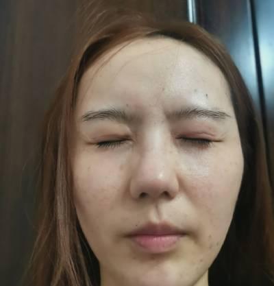 在广州韩妃医学美容医院找曾繁茂做自体脂肪面部填充手术后15天