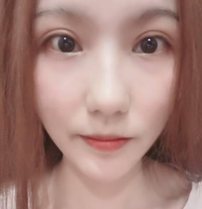 在广州韩妃医学美容医院找曾繁茂做自体脂肪面部填充手术后1个月