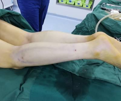 曾繁茂医生为我做的吸脂瘦小腿手术后