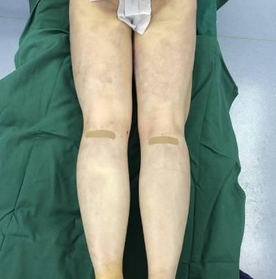 在深圳丽港丽格医疗美容门诊部做了吸脂瘦大小腿手术后
