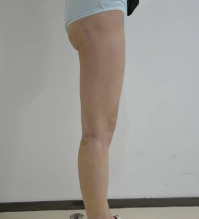 在深圳丽港丽格医疗美容门诊部做了吸脂瘦大小腿手术后10天