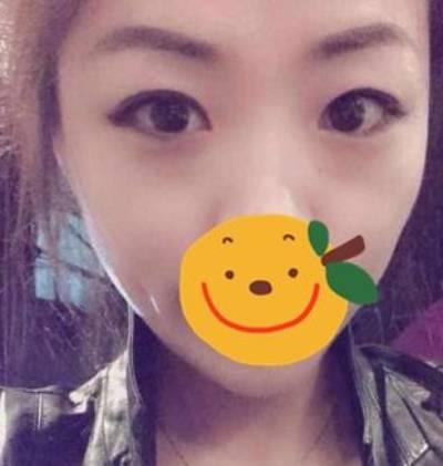 在广州丽尚做的眼综合整形手术后