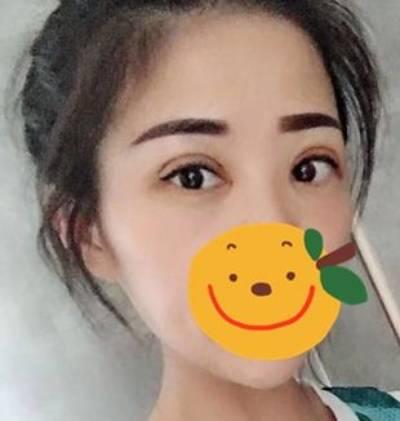 在广州丽尚做的眼综合整形手术后10天