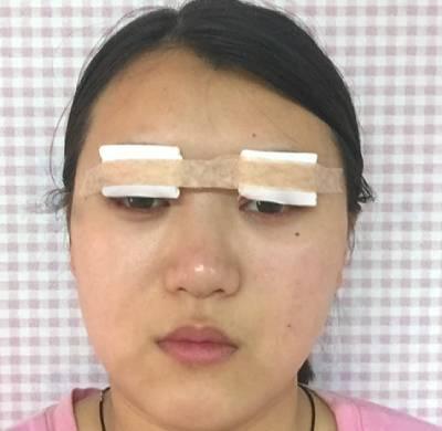 在广州丽尚整形美容医院做全切双眼皮手术后