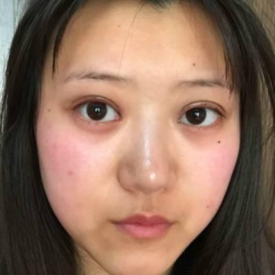 在广州丽尚整形美容医院做全切双眼皮手术后8天