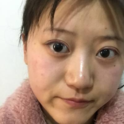 在广州丽尚整形美容医院做全切双眼皮手术后15天