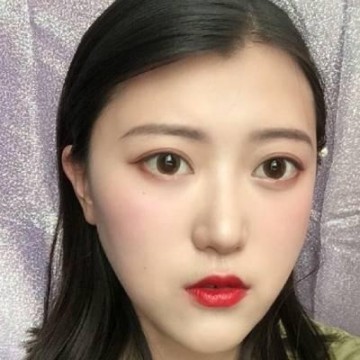 在广州丽尚整形美容医院做全切双眼皮手术后25天