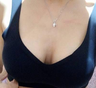 在广州丽尚整形美容医院做假体隆胸手术后60天