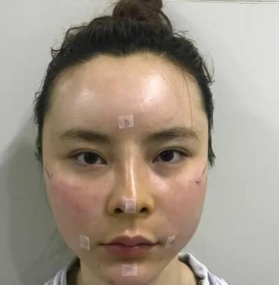 在广州丽尚整形美容医院做自体脂肪面部填充手术后