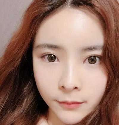 在广州丽尚整形美容医院做自体脂肪面部填充手术后8天