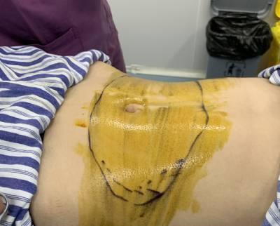 在广州瑞港医疗美容门诊部找黄其然做吸脂瘦腰腹手术后
