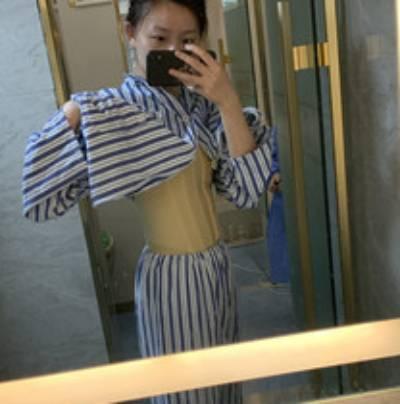 在广州瑞港医疗美容门诊部找黄其然做吸脂瘦腰腹手术后25天