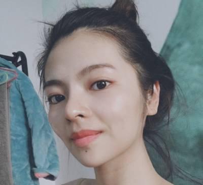 在广州瑞港医疗美容门诊部做自体肋软骨隆鼻术后90天