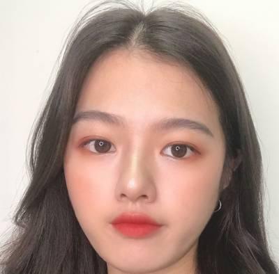 找广州韩妃的王媛做全切双眼皮手术后
