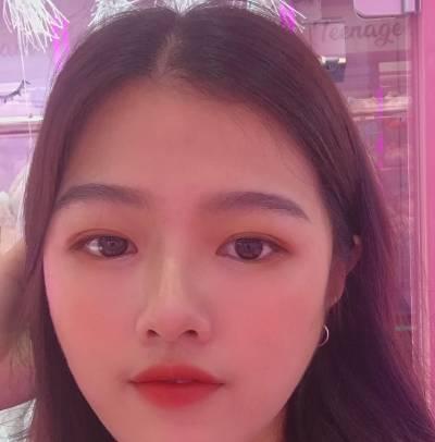 找广州韩妃的王媛做全切双眼皮手术后12天