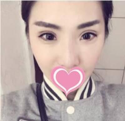 到广州韩妃找李光琴做了双眼皮修复手术后15天