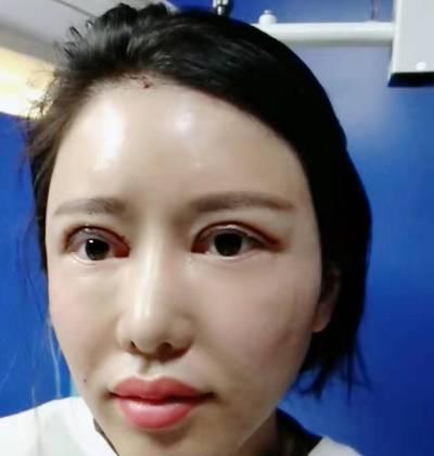 闽闽 的双眼皮修复术前照