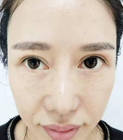 闽闽 的双眼皮修复术后照