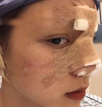 南方医科大学珠江医院的陈兵为我做的鼻综合整形手术后3天